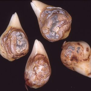 Penicilioze-tulpiu-ligos